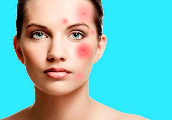 Как снять воспаление с кожи на лице
