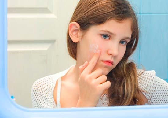Прыщи у подростка девочки как избавиться — Красивое лицо