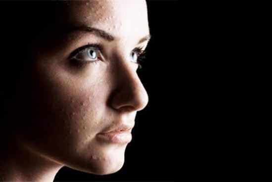 Угри на лице сухой кожи лица